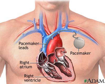 Our light will ... Pacemaker Battery