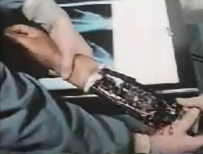 steve-austin-bionic-arm1.jpg
